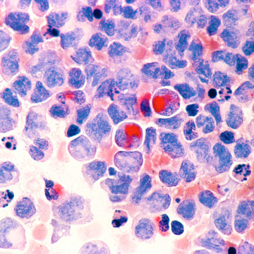 https://commons.wikimedia.org/wiki/File:Leukemia_(aml).jpg